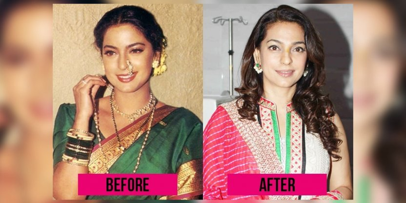 9 Bollywood stars after plastic surgery?!
