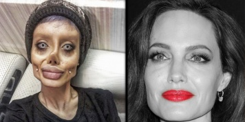 19-year-old Iranian who underwent 50 surgeries to look like Angelina Jolie but …