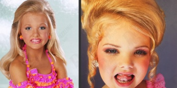 At the age of 8, she had injected botox and depilated. The sad reality of children's beauty pageants...