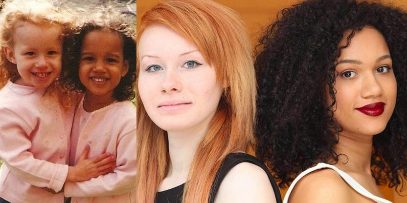 The world's first twins with different skin colors are now 18