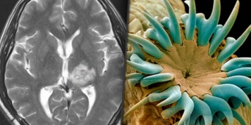 Scientists discovered worms that invade your brain by eating a very common food...