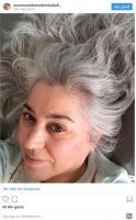 The study that gives new clues about premature gray hair 4
